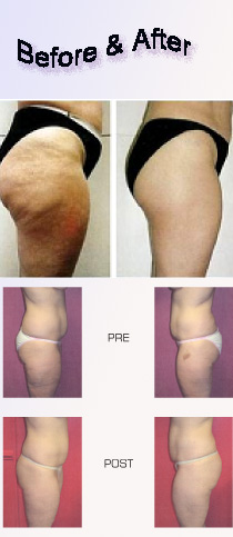 Lose calf fat quickly picture 3